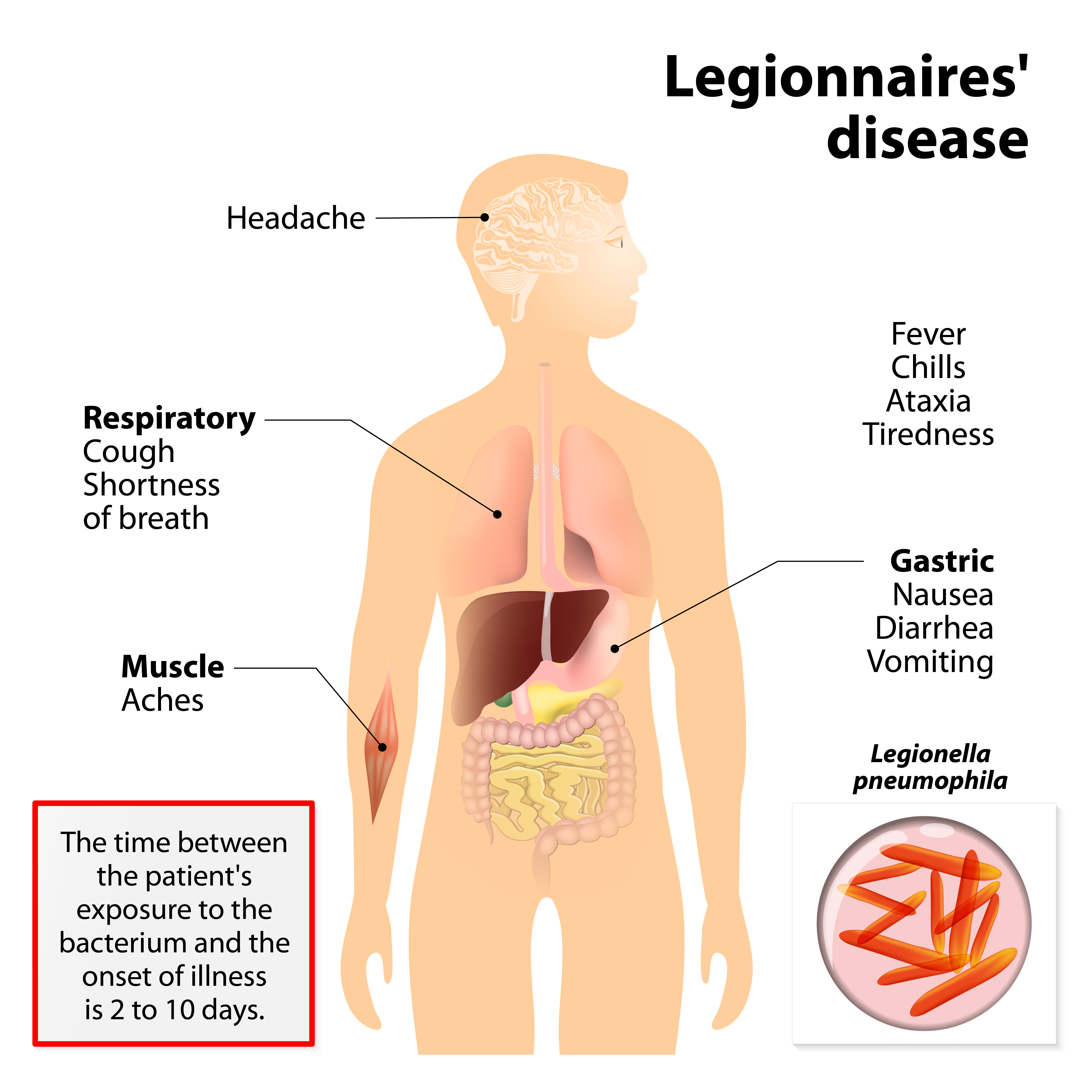 Legionnaires'disease