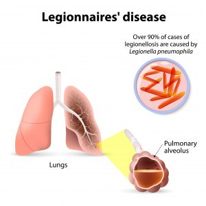 Cases Of Legionnaires' Disease Across The Us Have. Right Signs. K53 Signs. Victims Relearn Signs. Dash Signs Of Stroke